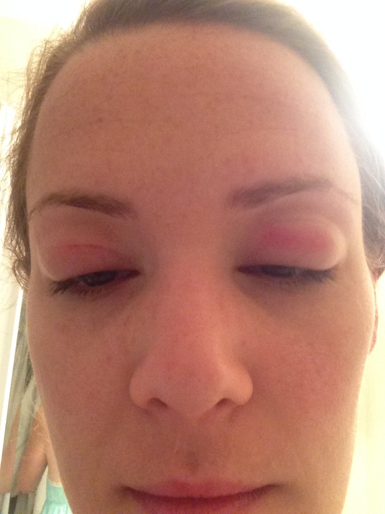 Peachtree Roadies eye infection